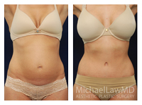 before and after photo of patient who underwent a tummy tuck