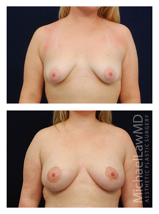 Breast Augmentation Frontal view - Dr. Law