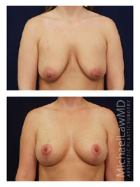 Breast Lift in Raleigh, NC Dr Davis and Dr Pyle
