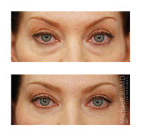before and after photo of patient who underwent a browlift