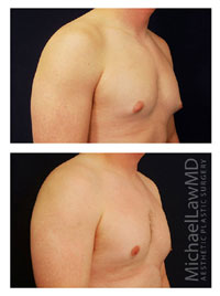 before and after photo of patient who underwent a male breast reduction surgery or gynecomastia