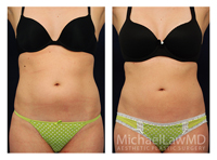 before and after photo of patient who underwent a liposuction
