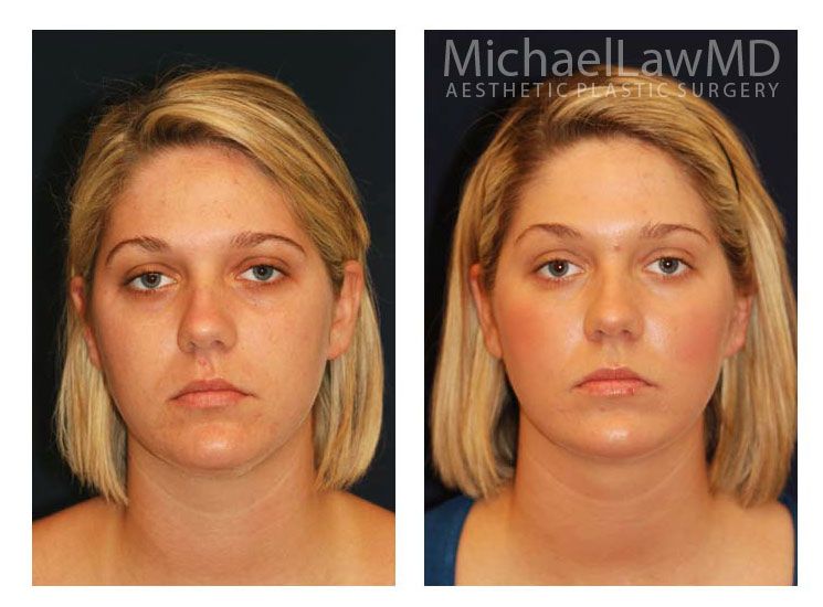 Eye Plastic Surgery Prices Dallas Tubular Breast Before And After