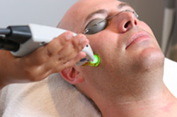 Durham Laser Hair Removal Treatment for Men