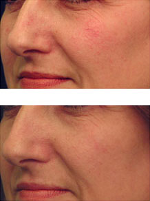Raleigh North Carolina Rosacea And Vein Treatment