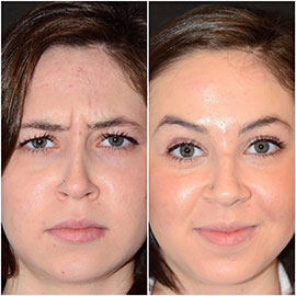 Botox Before/After