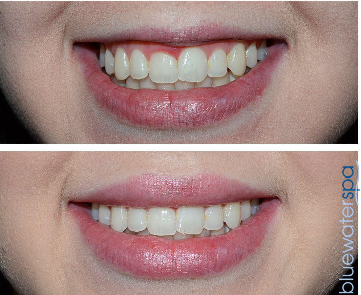 botox for gummy smile patient