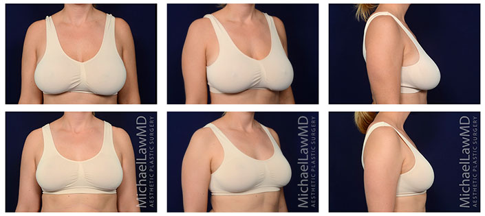 breast reduction before/after