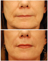 juvederm example