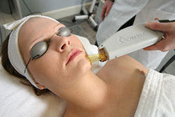 North Carolina Laser Hair Removal
