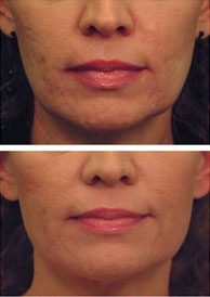 Get Rid Of Facial Wrinkles And Lines Raleigh Nc