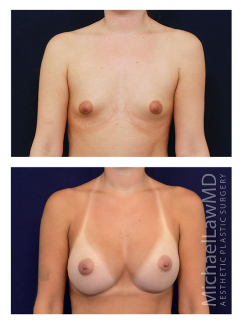 Breast Augmentation Frontal view