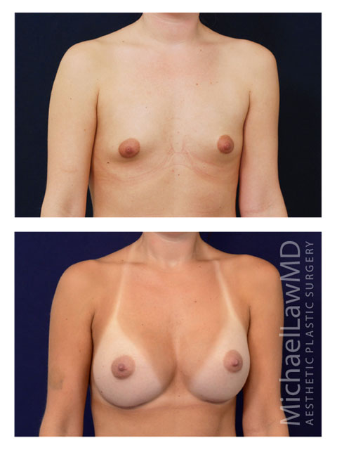 Breast Augmentation Oblique View - Raleigh