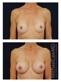 Breast Revision Frontal view