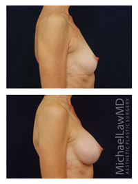 Breast Revision Side View