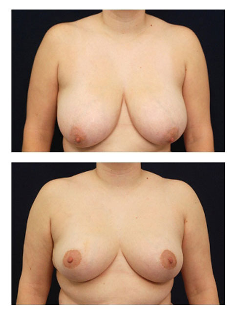 Breast Reduction Frontal view
