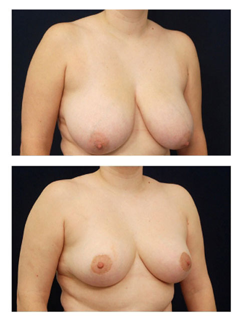Breast Reduction Oblique View