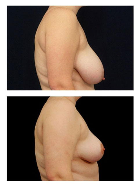 Breast Reduction Side View
