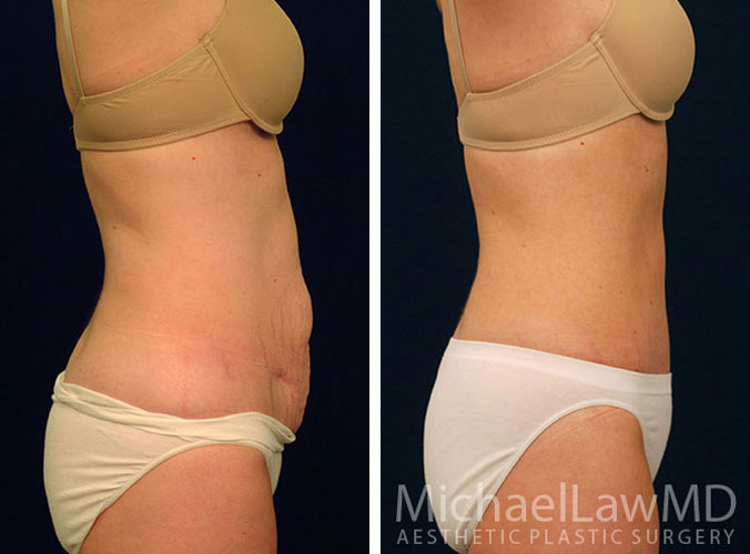 Abdominoplasty (Tummy Tuck) Photos