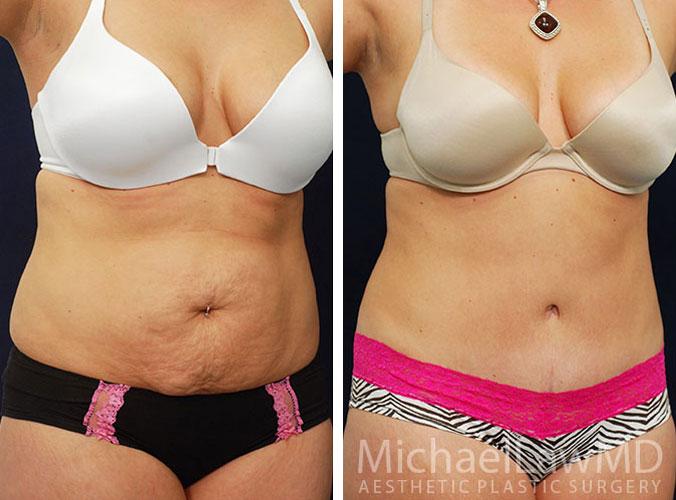 Abdominoplasty (Tummy Tuck) Photos