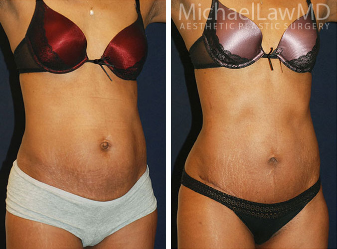 Tummy Tuck Before and After Photo