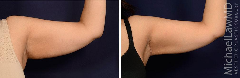 Arm Lift Surgery
