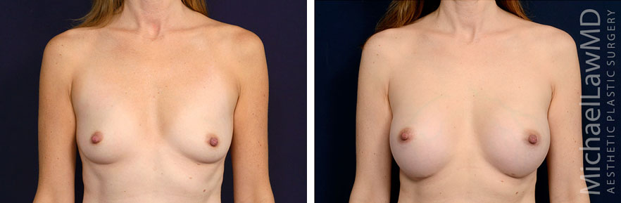 Breast Enhancement Before and Afters