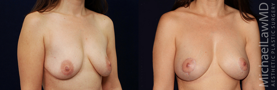 Breast Augmentation Raleigh NC