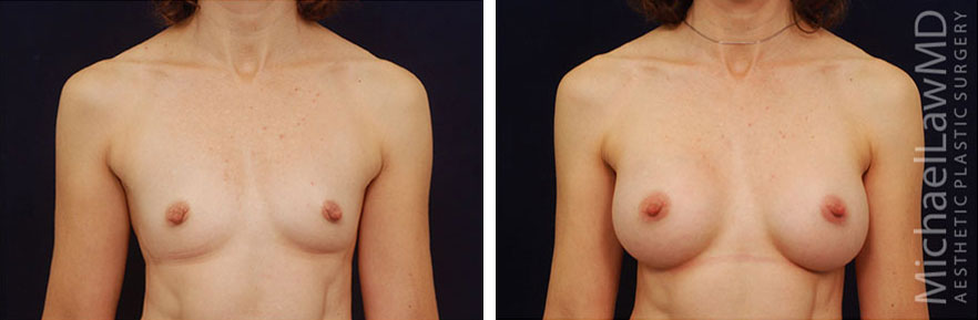Breast Implant Surgery Raleigh NC