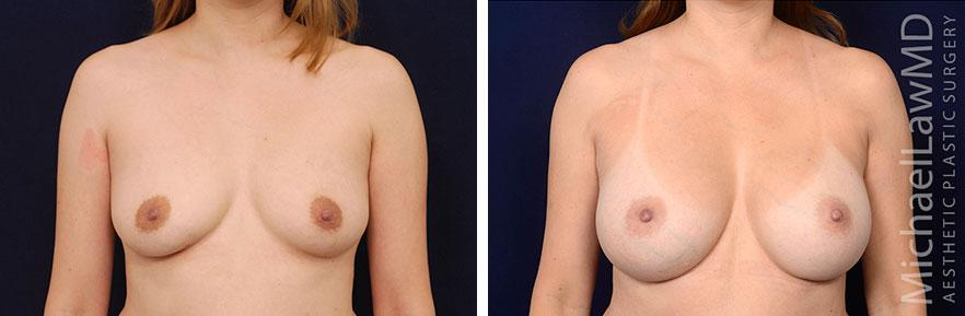 breastaug01-nr2-F