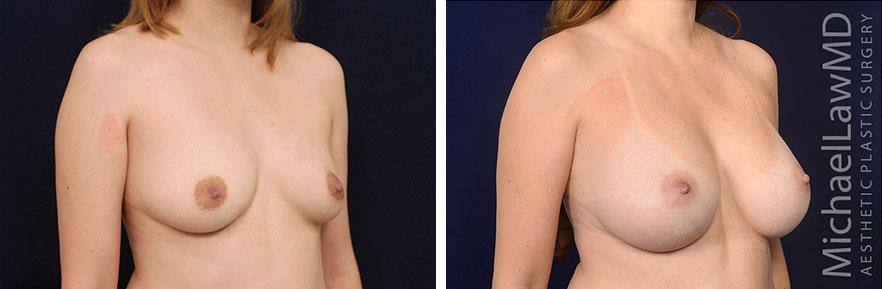 breastaug01-nr2-O