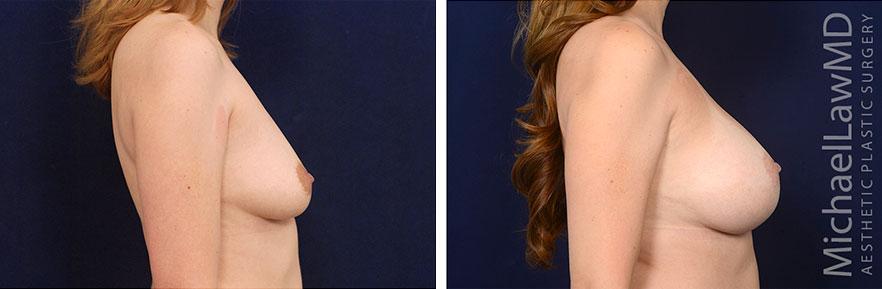 breastaug01-nr2-S
