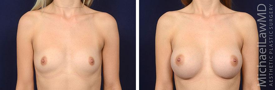 Breast Augmentation Raleigh NC