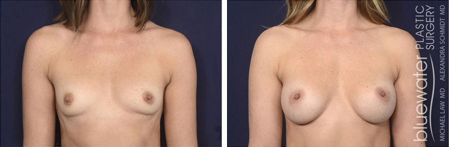 breastaug180a