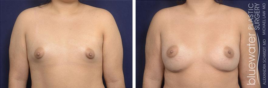 breastaug1a_10_28_20