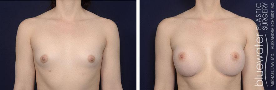 breastaug1a_12_7_20