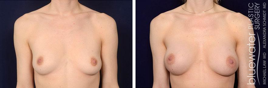 breastaug1a_1_13_21