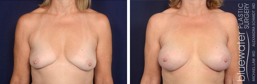 breastaug1a_2_8_21
