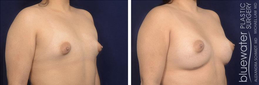 breastaug1b_10_28_20