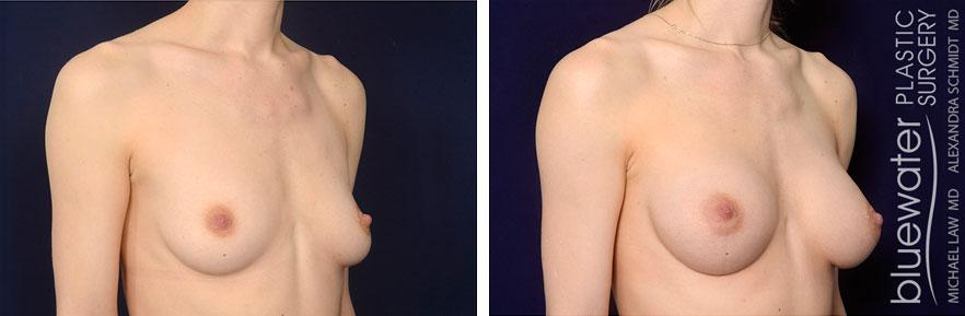 breastaug1b_1_13_21