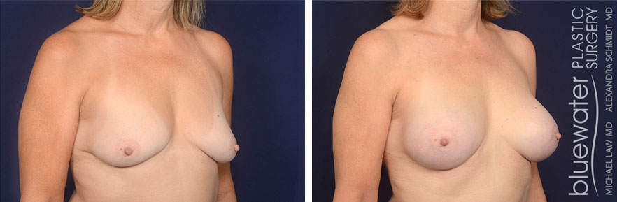 breastaug1b_2_8_21