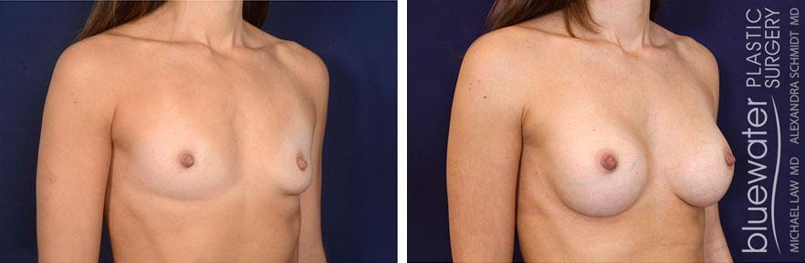 breastaug1b_3_15_21