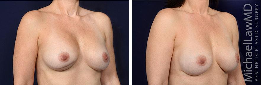 breastaugrevision-14o-rev2