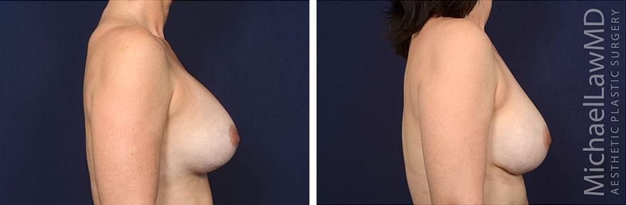 breastaugrevision-14s-rev2