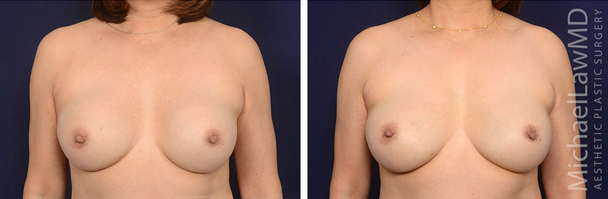 Breast Augmentation Revision Raleigh NC