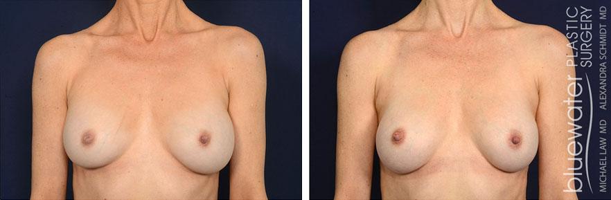 breastrev1a_5_24_21