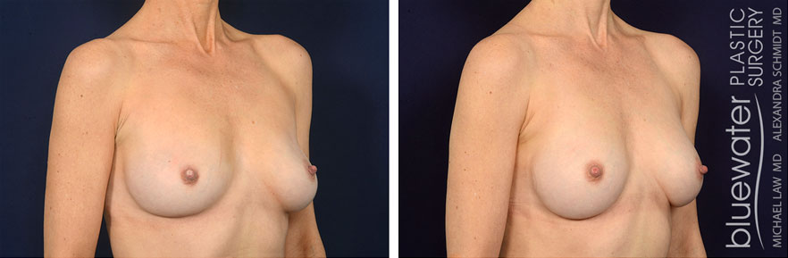 breastrev1b_5_24_21