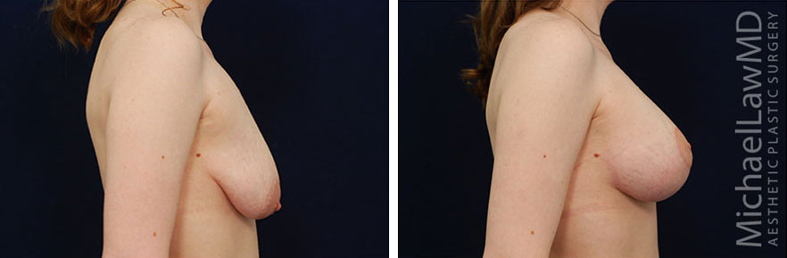breast lift before and afters in raleigh NC