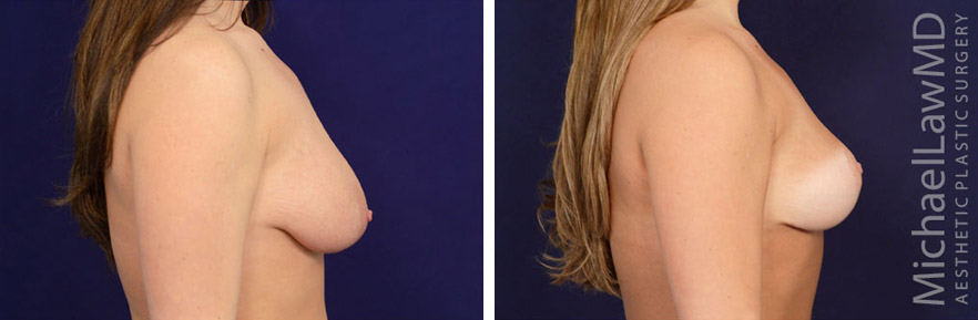 s-breast lift before and afters in raleigh NC