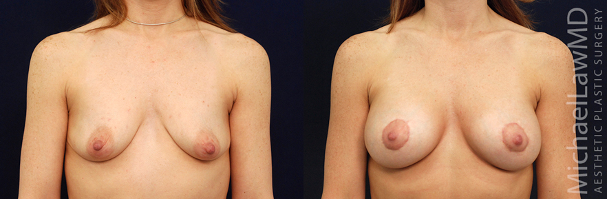 f-breast lift before and afters in raleigh NC
